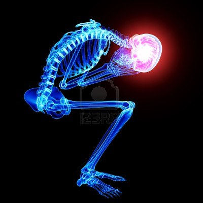 15482482-brain-pain-in-skeleton