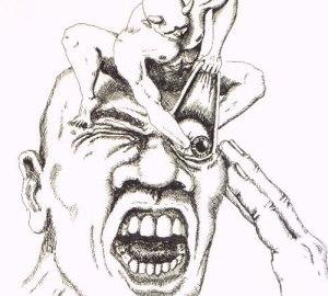 Cluster-headache