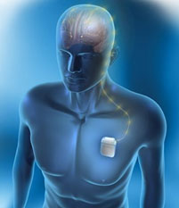 alerts-device-medtronic-neurostimulation-140317-01